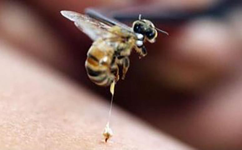 被蜜蜂蛰了几天可以消肿图片